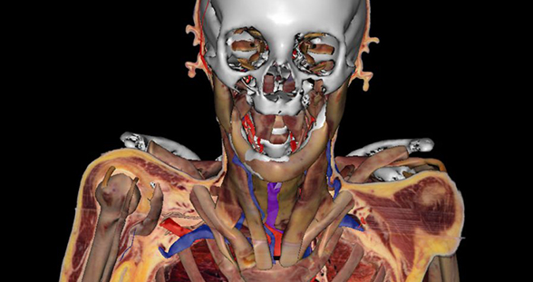 Living Cadaver Susan Potter